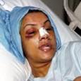 """<a href=""""https://derhonigmannsagt.wordpress.com/2013/04/29/turken-halten-gewalt-gegen-frauen-fur-notwendig/"""">Türken halten Gewalt gegen Frauen für """"notwendig""""</a> <a href=""""http://derstandard.at/2000015311700/Zwang-ist-ein-Angriff-auf-die-Persoenlichkeit-der-Frau"""">Türkische Aktivistin: """"Es gab einen Zwang, sich europäisch zu kleiden</a>"""""""